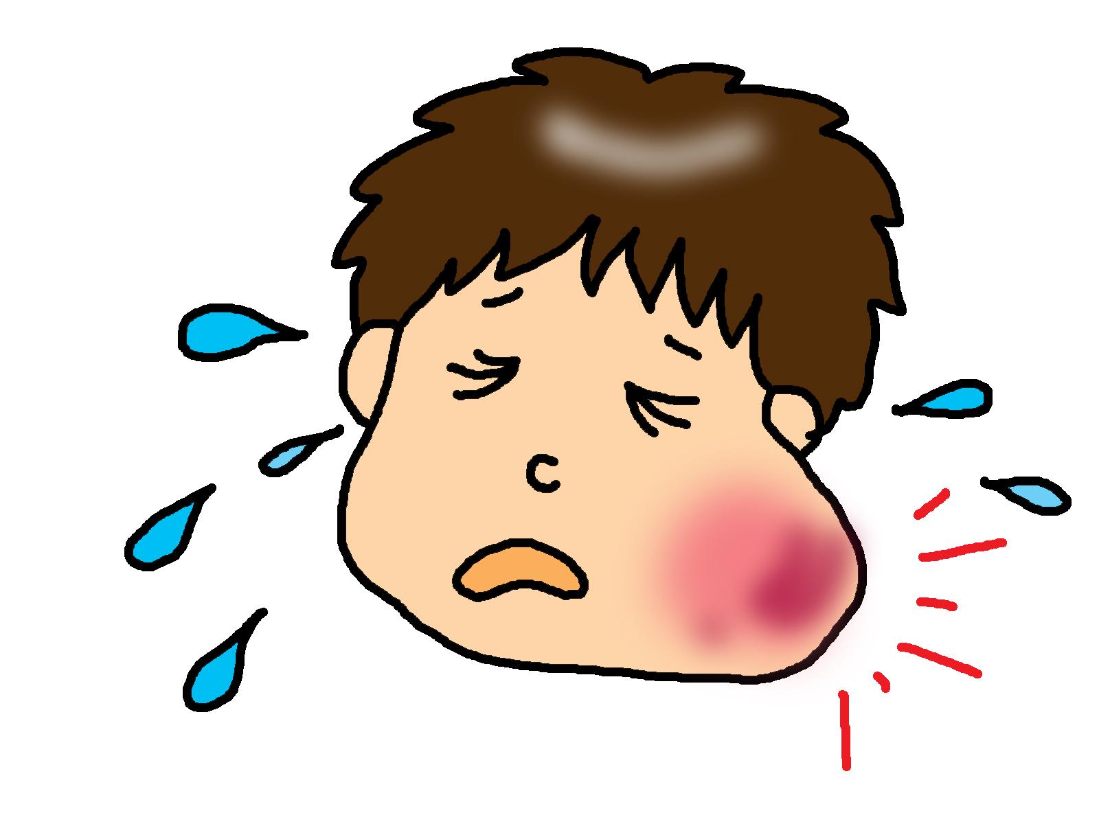 おたふく風邪に中学生がかかったら?症状や合併症は?予防接種はすべき?